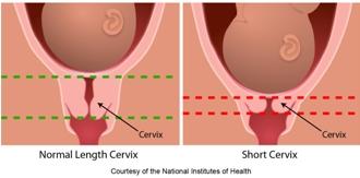 progesterone_gel_preterm_birth